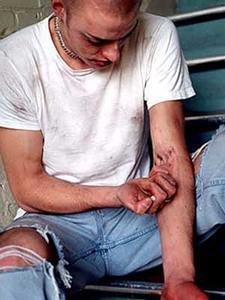 Наркомания -  болезнь, требующая грамотного лечения
